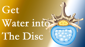 Apple Country Chiropractic uses spinal manipulation and exercise to boost the diffusion of water into the disc which supports the health of the disc.