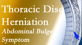 Apple Country Chiropractic cares for thoracic disc herniation that for some patients prompts abdominal pain.