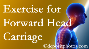 Williamson chiropractic treatment of forward head carriage is two-fold: manipulation and exercise.