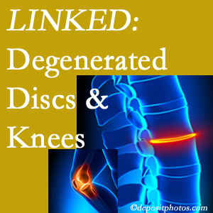 Degenerated discs and degenerated knees are not such unlikely companions. They are seen to be related. Williamson patients with a loss of disc height due to disc degeneration often also have knee pain related to degeneration.